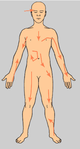 Referred Pain Arrows