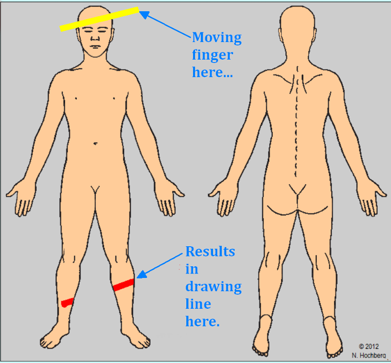 drawing problem image